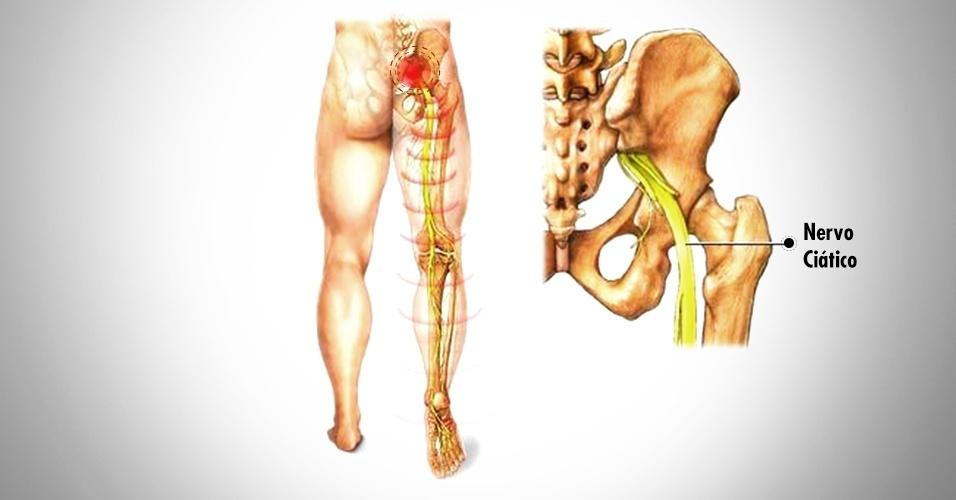 Боли в тазобедренном суставе чем обезболить
